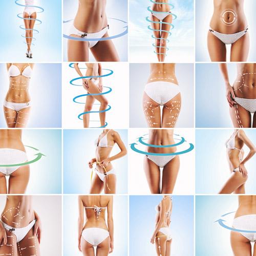 Celulitis, Flacidez y Estrías
